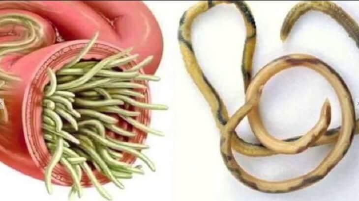 اعراض ديدان البطن وعلاجها وطرق الوقاية منها