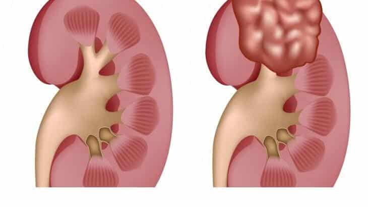 تلوث البيئة وعلاقته بالإصابة بأمراض الكلى