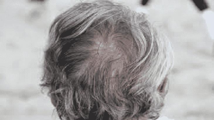 تفسير حلم الشعر الابيض للمتزوجه