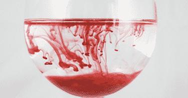 تفسير رؤية دم الحيض في المنام ومعناه
