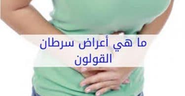 سرطان القولون