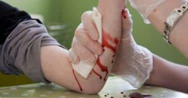 رؤية الجرح في المنام