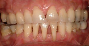 علاج تآكل اللثة وهروبها عن الأسنان بالأعشاب