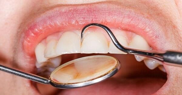 كيفية تقوية مينا الأسنان وعلاج التآكل