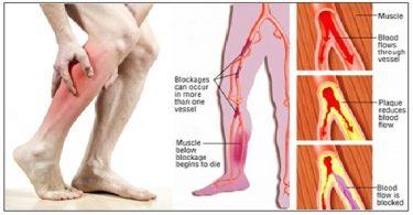 اعراض تصلب الشرايين الطرفية وعلاجها بالاعشاب