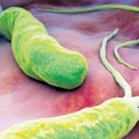 علاج جرثومة المعده نهائيا بالاعشاب