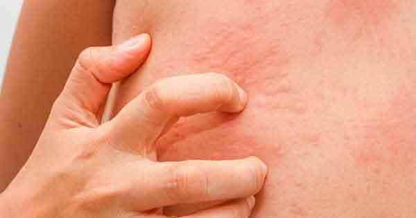 9 وصفات طبيعية لعلاج الحكة في الجسم بالاعشاب