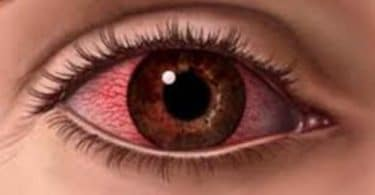 تفسير حلم العين المصابة في المنام