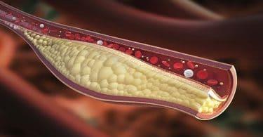 طرق علاج املاح الفوسفات بالاعشاب