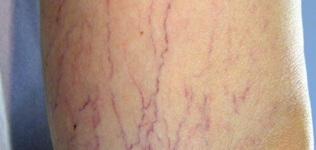 علاج دوالي الساقين للنساء والرجال