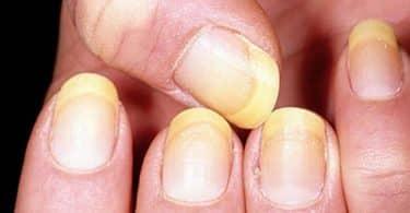 علاج فطريات الاظافر اليد بالخل والاعشاب الطبيعية