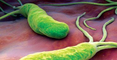 علاج نحافة الميكروب الحلزوني