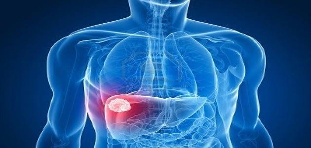 اعراض تضخم الكبد والطحال وطرق الوقاية والعلاج