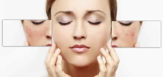 خلطات سريعة لإزالة البقع من الوجه