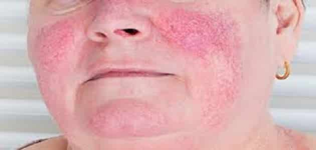 Treatment of inverted pink bran and ways to avoid infection