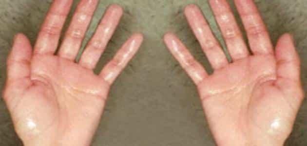 كيفية التخلص من تعرق اليدين نهائياً