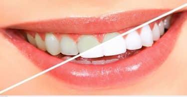 كيفية تبييض الأسنان بالفحم والليمون