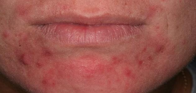 اسباب ظهور حبوب حمراء تسبب الحكة في الجسم