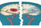 اعراض اورام الراس والاعصاب المبكرة والمتقدمة
