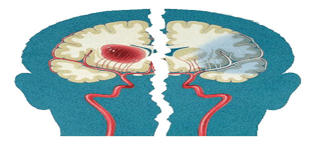 Symptoms of early tumors of the head and nerves