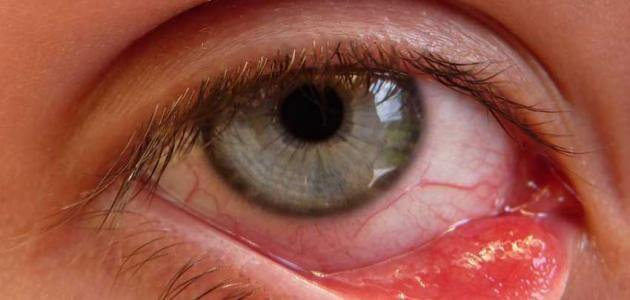 علاج الكيس الدهني في العين بالثوم والاعشاب