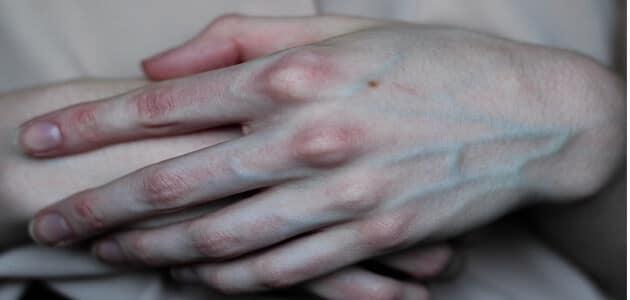 معلومات عن لماذا تظهر عروق اليد بشكل بارز عبر مرور السنوات