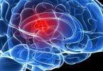 اعراض ورم المخ والأعصاب الحميدة