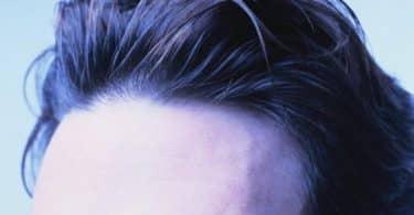 كيفية استخدام بخاخ مينوكسيديل لزراعة وانبات الشعر