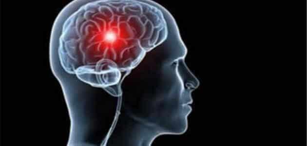كيفية التعامل مع جلطات المخ فور حدوثها في المنزل