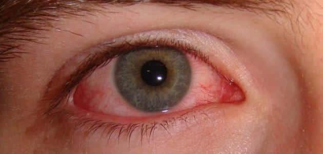 أسباب ألم العين عند تحريكها وعلاجها