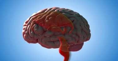 أفضل علاج لاستسقاء الدماغ بالطب النبوي الحديث