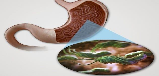اعراض ميكروب المعدة النفسية والمزمنة وعلاجها بالأعشاب