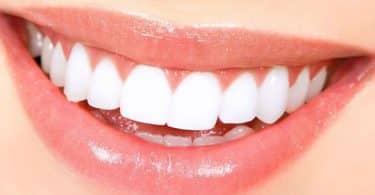 تفسير رؤية الأسنان البيضاء في المنام