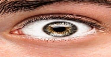 علاج جحوظ العين الوراثية طبيعيًا