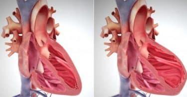 فوائد حبوب تريتاس لعلاج فشل القلب الاحتقاني المزمن