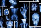 فوائد واضرار الاشعة السينية على جسم الانسان