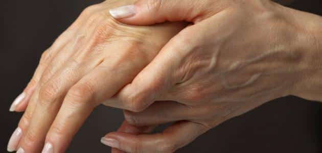 What causes the swelling of the left hand veins when it is inflamed?