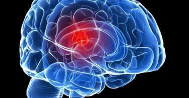 هل نزيف الدماغ يسبب الوفاة وما مدى الشفاء منه