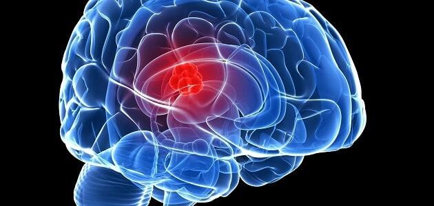 هل نزيف الدماغ يسبب الوفاة وما مدى الشفاء منه معلومة ثقافية