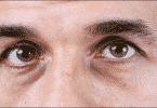 ما الأمراض التي تسبب سواد تحت العين للرجال