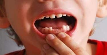 تفسير سقوط الأسنان في الحلم
