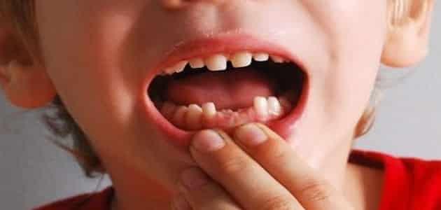 تفسير سقوط الأسنان في الحلم للإمام الصادق معلومة ثقافية