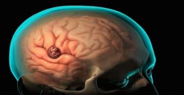 ما نسبة شفاء ونجاح عملية خراج المخ وأعراضه