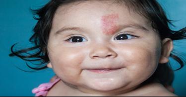 ما أنواع الوحمات عند الأطفال وكيفيه علاجها