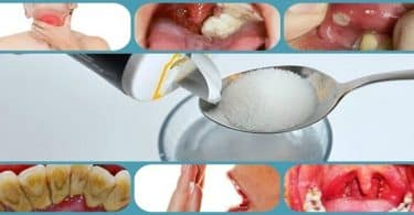 أهمية نظافة الأسنان واللثة عند المضمضة بالماء والملح