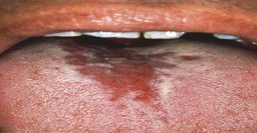 أسباب اصفرار اللسان ومرارة الفم