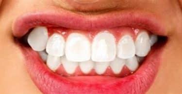 أسباب الضغط على الأسنان أثناء النوم