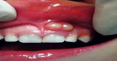 اسباب خراج الاسنان المتكرر
