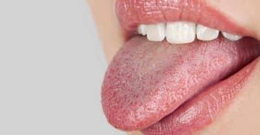 جفاف الفم واللسان