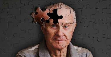 فقدان الذاكرة أسبابه وعلاجه